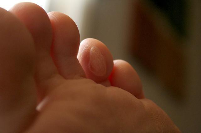 Une ampoule sur un doigt de pied.
